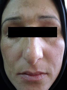 ماسک لک صورت برای درمان لک های صورت